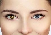 هتروکرومیا (تفاوت رنگ دو چشم )