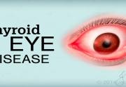 عملکرد تیروئید بر روی چشم