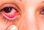 بیماری یوئیت چشم